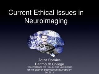 Current Ethical Issues in Neuroimaging