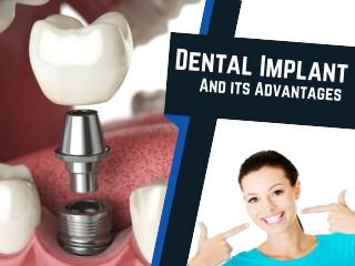 Advantages of Dental Implants Procedure