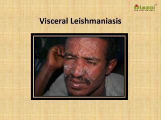 Visceral Leishmaniasis: Causes, Symptoms, Daignosis, Prevention and Treatment