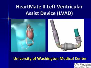 HeartMate II Left Ventricular Assist Device (LVAD)