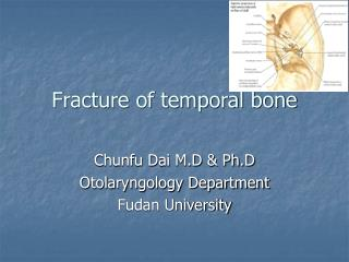 Fracture of temporal bone