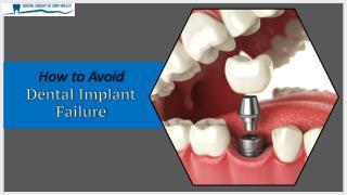 How to Avoid Dental Implant Failure