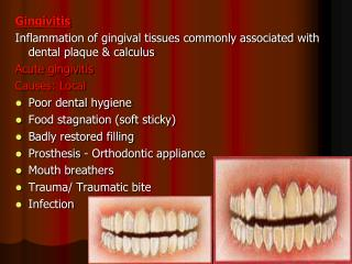 Gingivitis Inflammation of gingival tissues commonly associated with dental plaque & calculus  Acute gingivitis Caus