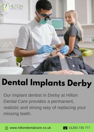 Dental Implant Derby