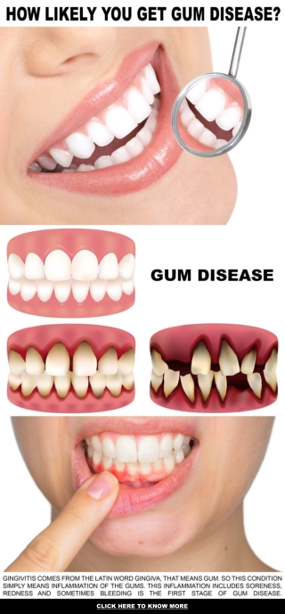 HOW LIKELY YOU GET GUM DISEASE?