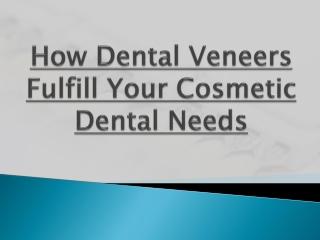 How Dental Veneers Fulfill Your Cosmetic Dental Needs