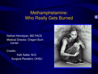 Methamphetamine: Who Really Gets Burned