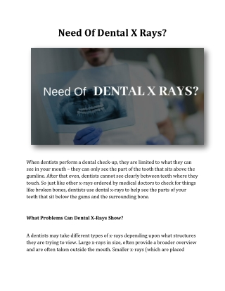 Need Of Dental X Rays?