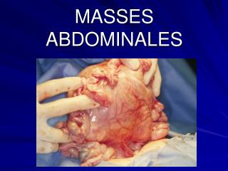 MASSES  ABDOMINALES