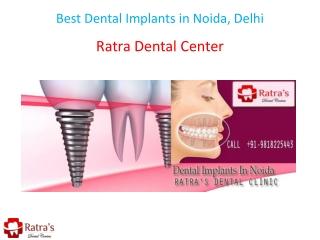 Best Dental Implants in Noida, Delhi