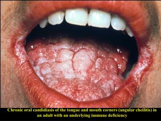 Chronic oral candidiasis of the tongue and mouth corners angular cheilitis in an adult with an underlying immune deficie