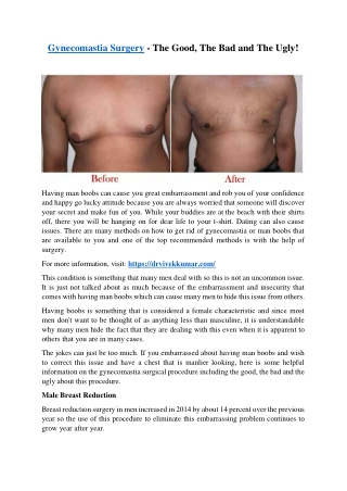 Gynecomastia Surgery - The Good, The Bad And The Ugly!