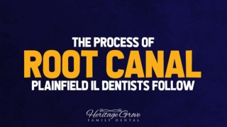 The Process of Root Canal, Plainfield IL Dentists Follow
