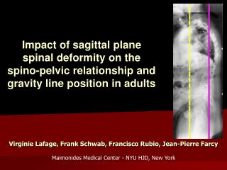Impact of sagittal plane spinal deformity on the spino-pelvic relationship and gravity line position in adults