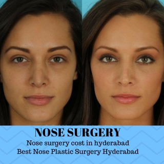 Nose surgery cost in hyderabad