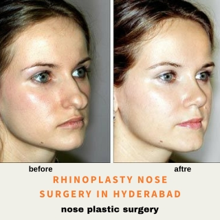 Rhinoplasty Nose Surgery In Hyderabad