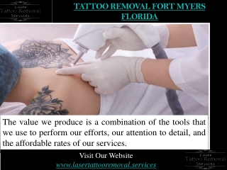 Tattoo Removal Fort Myers Florida
