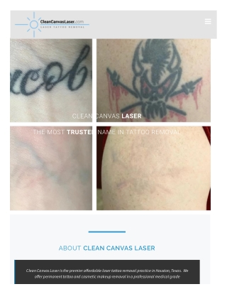 Laser Tattoo Removal in Huston Texas