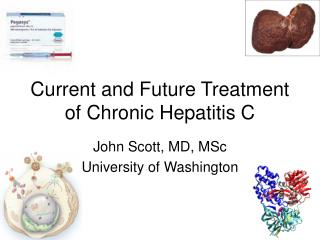 Current and Future Treatment of Chronic Hepatitis C