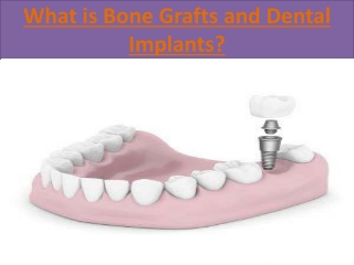 What is Bone Grafts and Dental Implants?