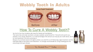 How To Tighten A Loose Tooth?