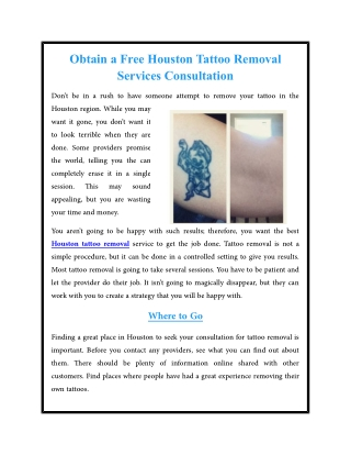 Obtain a Free Houston Tattoo Removal Services Consultation