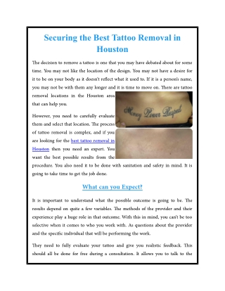 Securing the Best Tattoo Removal in Houston