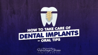 How To Take Care Of Dental Implants—Oral Tips