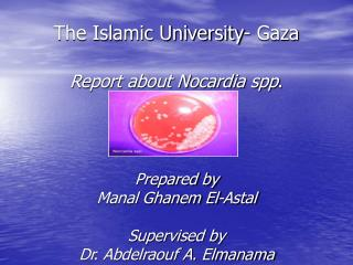 The Islamic University- Gaza   Report about Nocardia spp.    Prepared by  Manal Ghanem El-Astal  Supervised by Dr. Abdel