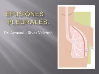 Efusiones  Pleurales.