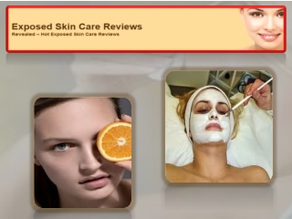 Exposed Skincare Reviews