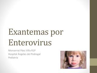 Exantemas por Enterovirus