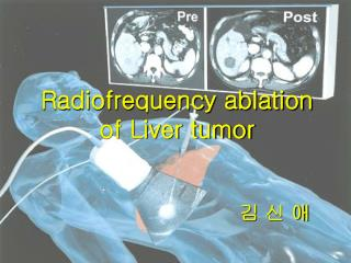 Radiofrequency ablation  of Liver tumor