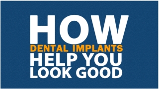 How dental implants help you look good