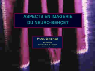 ASPECTS EN IMAGERIE  DU NEURO-BEHÇET