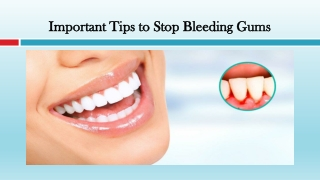 Important Tips to Stop Bleeding Gums