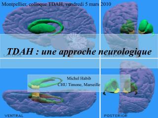 TDAH : une approche neurologique