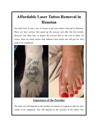 Affordable Laser Tattoo Removal in Houston