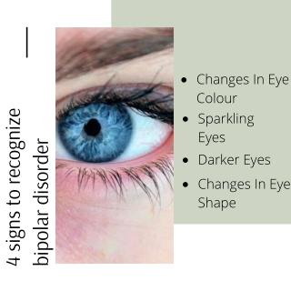 Bipolar Disorder Mania in the Eyes