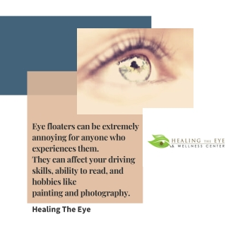 Facts On eye Floaters