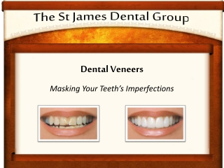 Dental Veneers will Mask Your Teeth's Imperfections