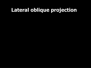 Lateral oblique projection