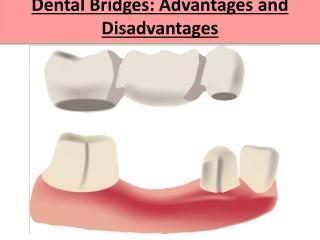 Dental Bridges: Advantages and Disadvantages