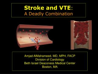 Stroke and VTE : A Deadly Combination