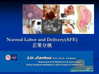 Normal Labor and Delivery(AFE) 正常分娩