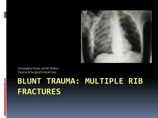 Blunt Trauma: Multiple Rib Fractures