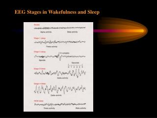 EEG Stages in Wakefulness and Sleep