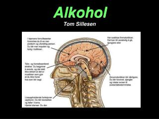 Alkohol Tom Sillesen