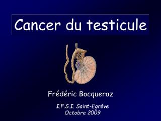 Cancer du testicule
