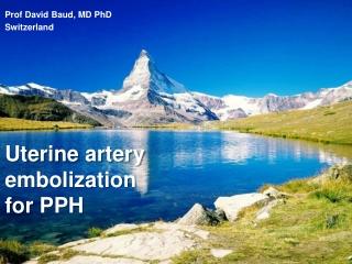 Uterine artery  embolization for PPH